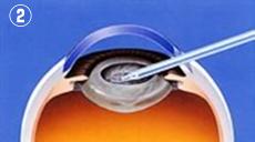 2.濁った水晶体の中身を超音波で砕いて取り除きます。