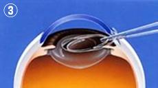 3.人工水晶体(眼内レンズ)を挿入します。