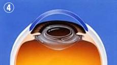 4.水晶体の袋の中に透明な眼内レンズがおさまります。