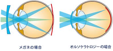 近視抑制効果のしくみ