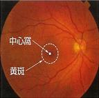 加齢黄斑変性症(AMD)
