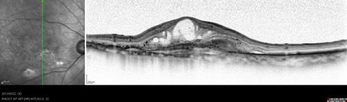 加齢黄斑変性症(OCT 画像)