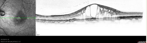黄斑浮腫(OCT 画像)