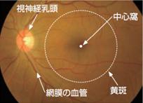 正常な目の眼底写真