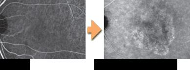 正常な目→滲出型加齢黄斑変性症
