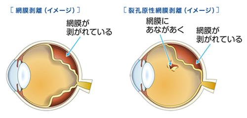 網膜剥離とは?